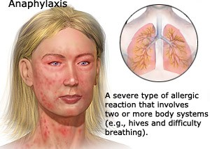 how to stop allergy attacks