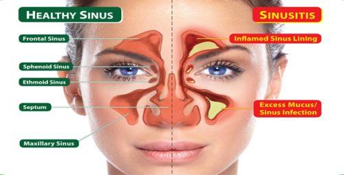 how to relieve sinus headache pressure