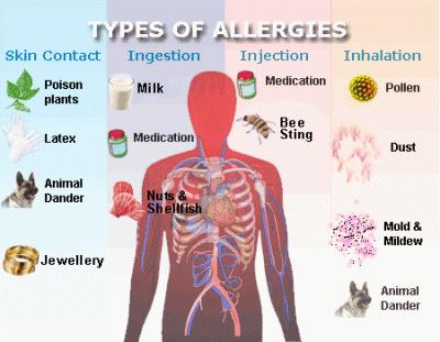 am i allergic